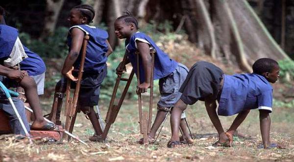 afrique du sud : 500.000 enfants handicapés privés d'école (pas de bras…)